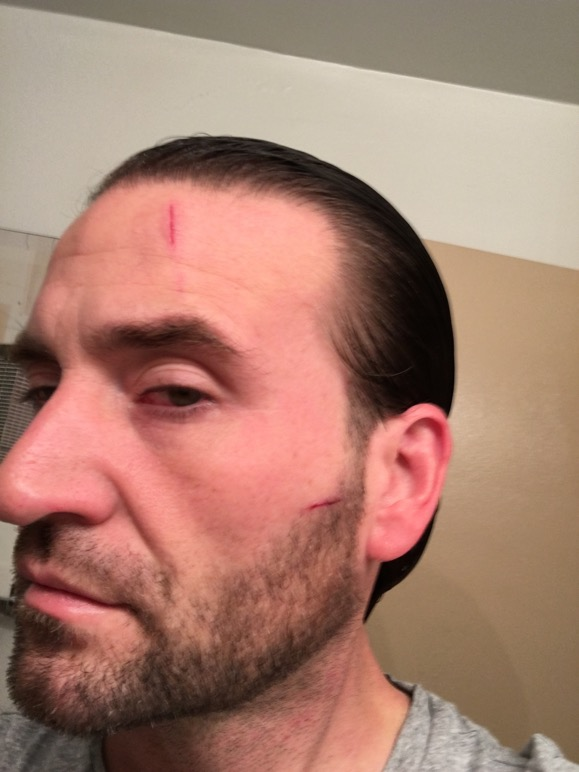 Who Knifed Me In The Face? - Jason Heath's Double Bass Blog